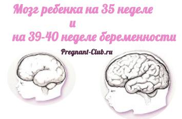 мозг ребенка