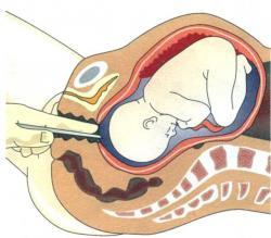 процесс амниотомии