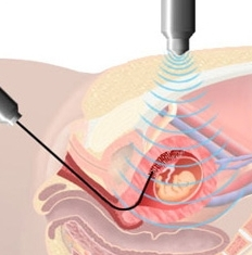 процедура биопсии ворсин хориона
