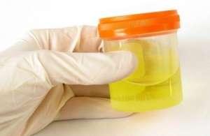 лейкоциты в моче грудничка