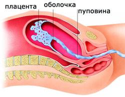 расположение плаценты, пуповины, амниотической оболочки