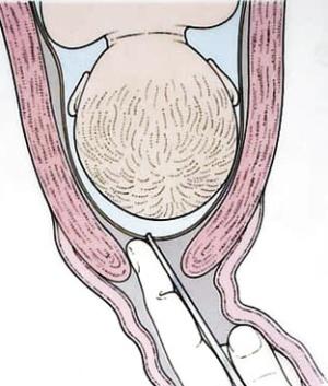 Подтекание околоплодных вод при беременности